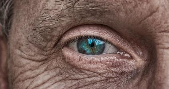THEY ARE NOT JUST SIGN OF AGING: Wrinkles reveal your personality and health problem you've got